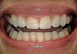 After-Tooth Reshaping