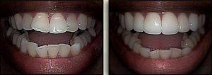 cosmetic dentist Dr. Marsh
