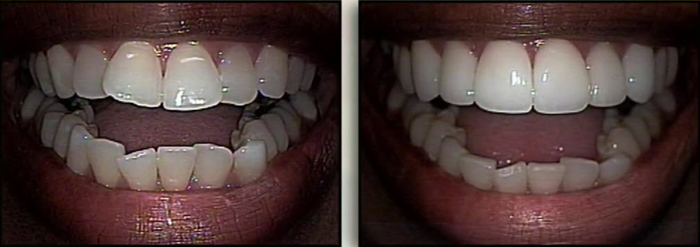 cosmetic dentistry before and after 2