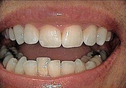 Before-Tooth Reshaping