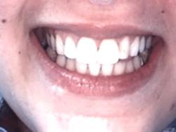 After-Repair Broken Teeth