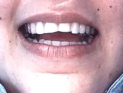 Before-Repair Broken Teeth