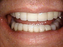 After-Dental Bridges