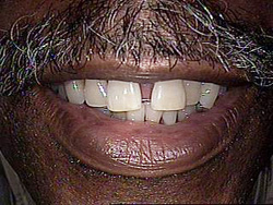 Before-Dental Bridges