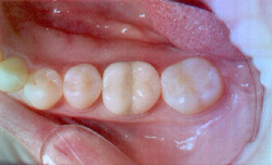 ceramic fillings after treatment