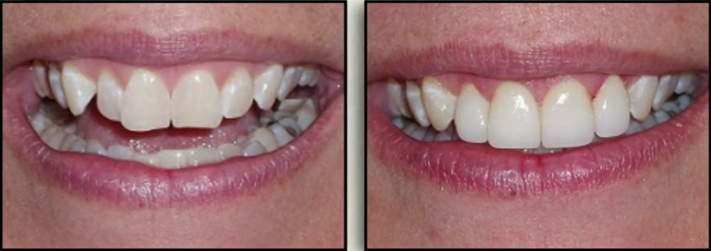 cleveland cosmetic dentistry before and after