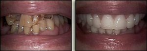 teeth restoration Cleveland Ohio