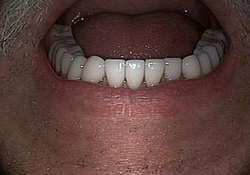 After-Dental Crowns