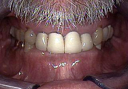 Before-Dental Crowns