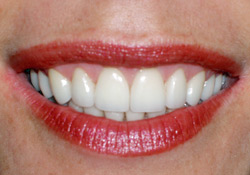 After-Gum Contouring & Veneers
