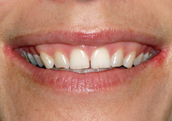 Before-Veneers & Gum Lift
