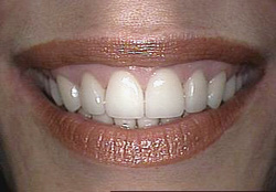 After-Gum Contouring