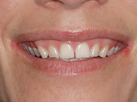 cosmetic dentisry-Cleveland Smiles