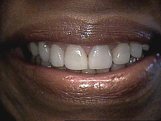 After-Porcelain Veneers