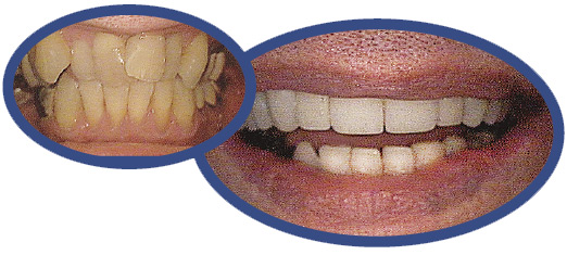 veneers and crowns before and after