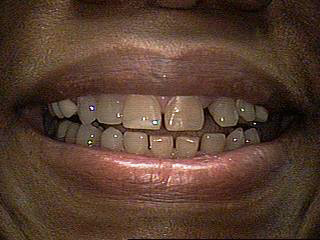 Before-Porcelain Veneers