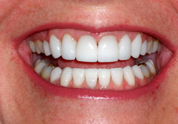 After-Veneers & Crowns