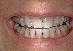 Before-Veneers & Crowns