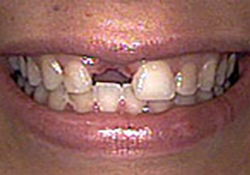 Before-Dental Implants