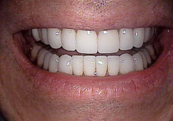 cleveland smiles-dental veneers after